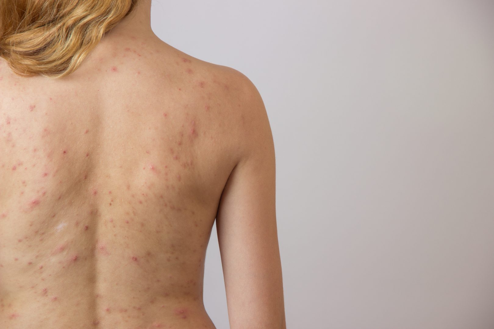 behandling bumser på ryggen