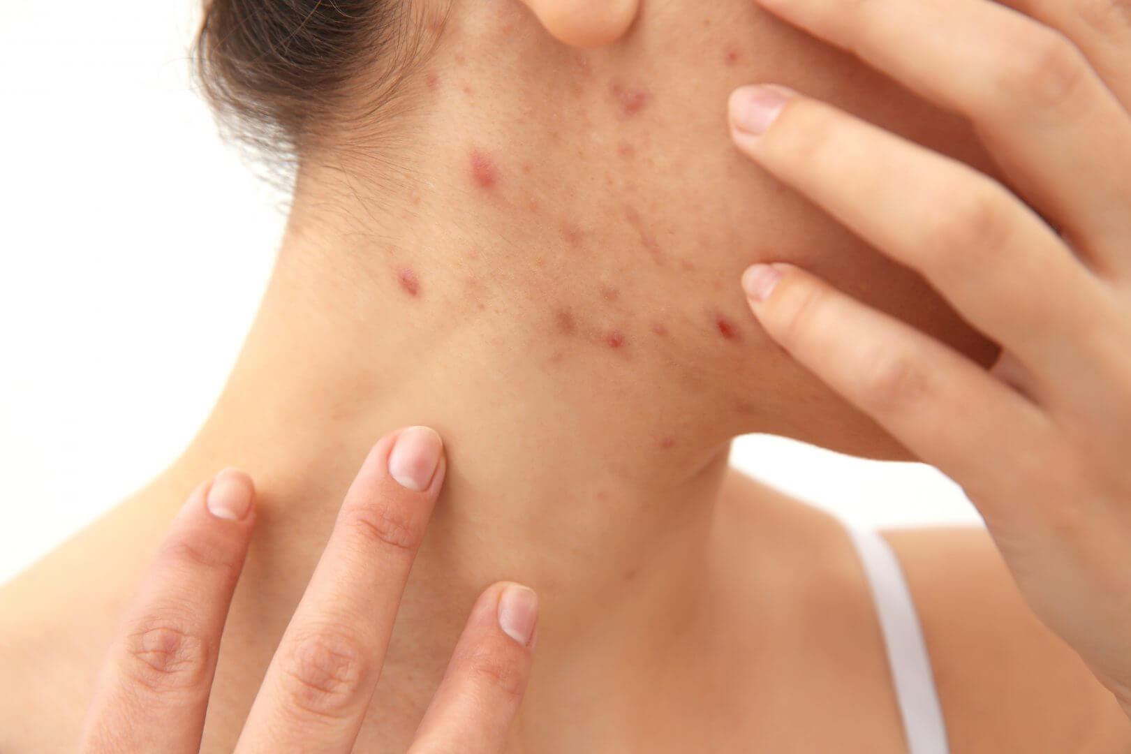 røde mærker i huden