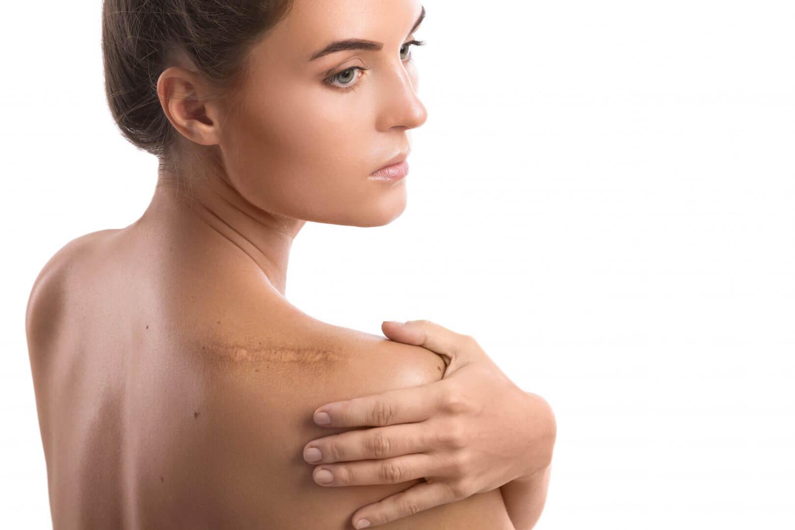ar på huden