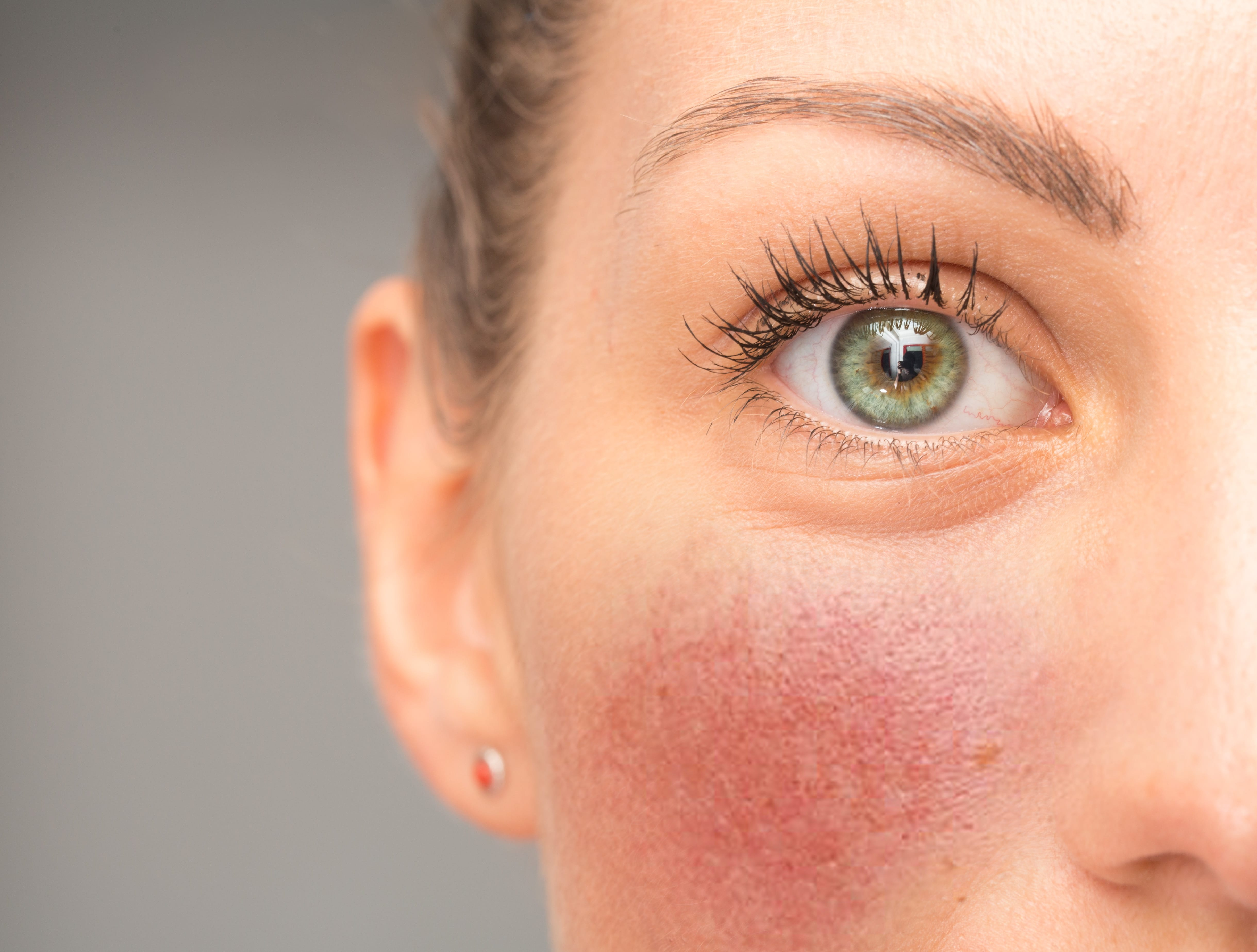 rød hud i ansigtet