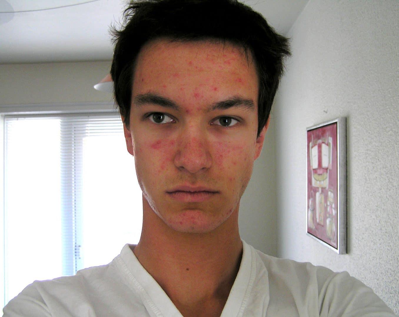 Mads Timmerman før han stiftede Danish Skin Care og blev ekspert i smuk hud.