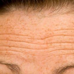 Pande med misfavning og solskader i huden