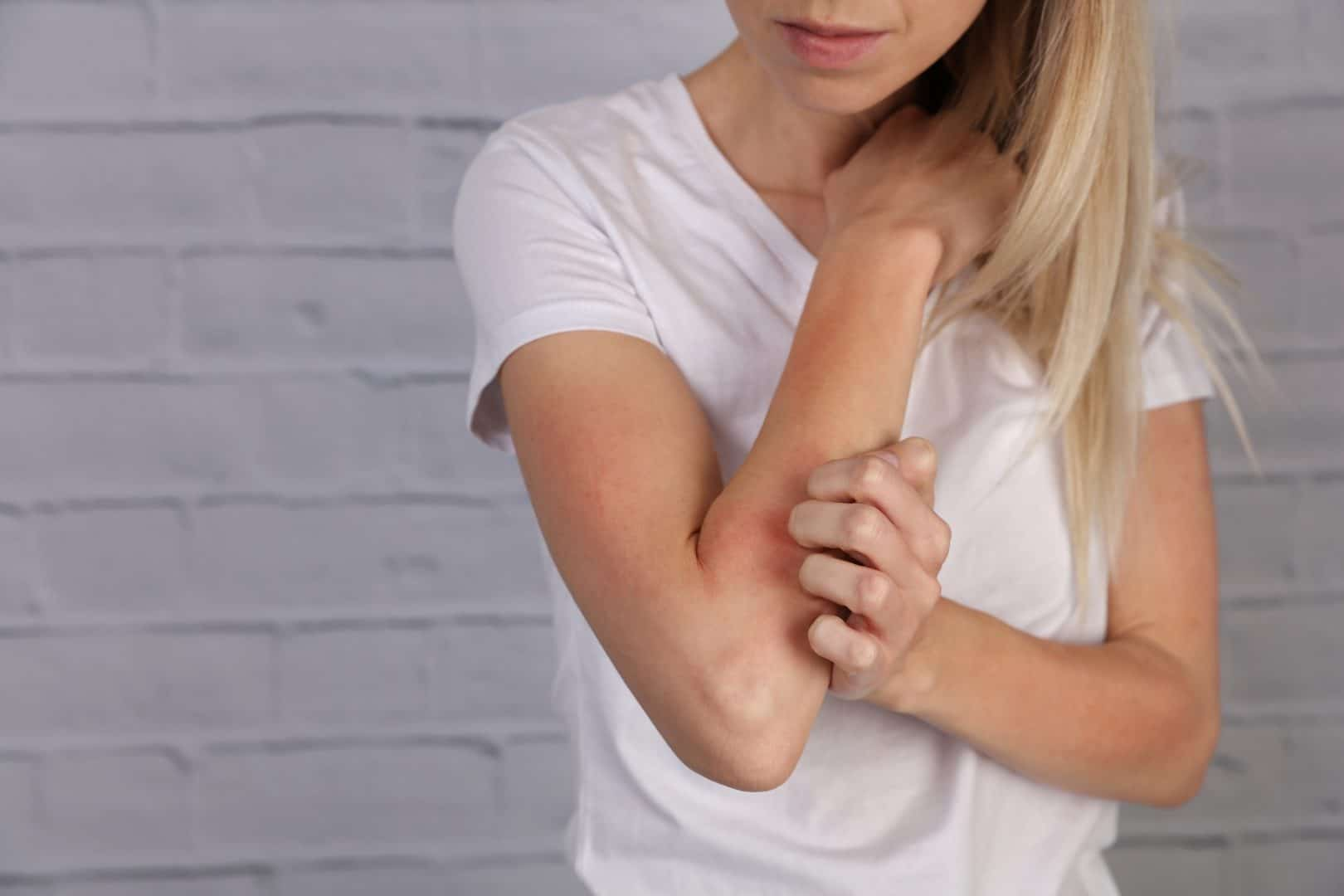 Keratosis Pilaris - behandling og effektiv creme mod Keratosis Pilaris