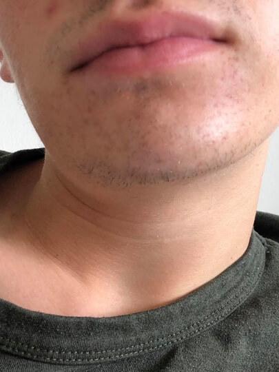 før efter resultat danish skin care hudpleje
